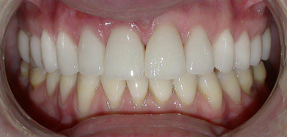 After e-Max Crowns and Veneers