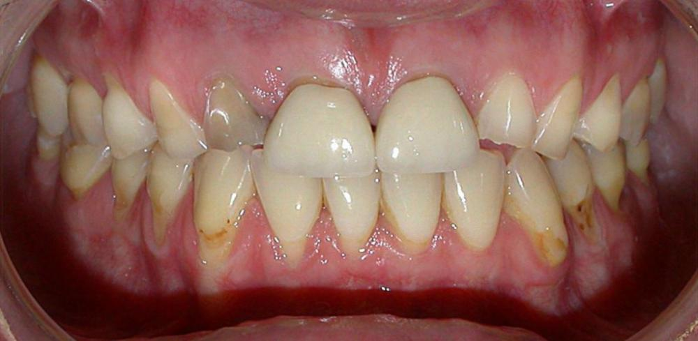Before e-Max Crowns and Veneers